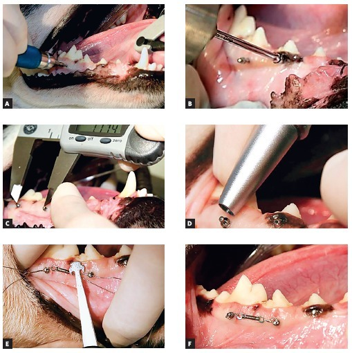 - Photographs illustrating the steps for mini-implant placement: A)Initial mini-implant placement with manual key; B) Conclusion of placementwith torque wrench; C) Measurement of inter mini-implant distance; D) Use ofPeriotest; E) Measurement of force of 1 N; F) NiTi spring inposition.