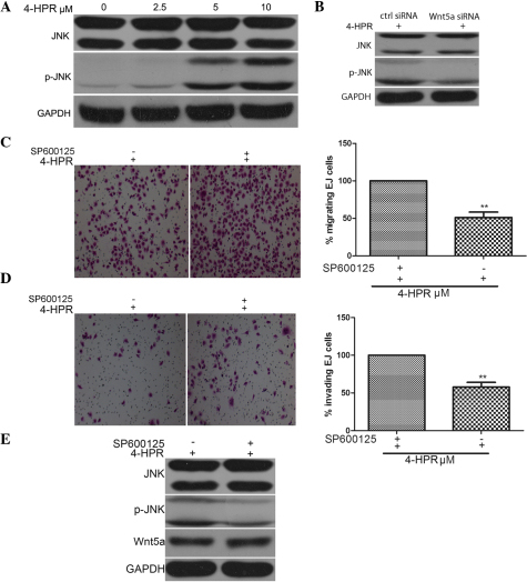 4-HPR inhibits the migration and invasion of EJ cells by stimulating Wnt5a activity and JNK phosphorylation. (A) EJ cells were incubated with the indicated concentrations of 4-HPR for 48 h, and the protein levels of JNK and pJNK were measured by western blotting. GAPDH was used as an internal control. (B) EJ cells were treated with 5 µM 4-HPR for 48 h, and then transfected with control or Wnt5a small interfering RNA. Cell lysates were assayed for JNK and pJNK by western blotting with anti-JNK, anti-pJNK and anti-GAPDH antibodies. (C-E) EJ cells were treated with SP600125, an inhibitor of JNK, and then incubated with 5 µM 4-HPR for 48 h. Cell migration and invasion were measured by (C) migration and (D) invasion assays (magnification, ×100), (E) and the protein extracts were analyzed by western blotting for JNK and pJNK. Data were expressed as the mean ± standard deviation from three independent experiments. *P<0.05, **P<0.01 vs. control. 4-HPR, N-(4-hydroxyphenyl) retinamide; siRNA, small interfering RNA; Wnt5a, wingless-type mouse mammary tumor virus integration site family, member 5a; GAPDH, glyceraldehyde 3-phosphate dehydrogenase; ctrl, control; JNK, c-Jun N-terminal kinase; pJNK, phosphorylated c-Jun N-terminal kinase.