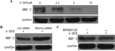 4-HPR inhibits the migration and invasion of bladder cancer cells through suppression of MMP-2. (A) EJ cells were incubated with the indicated concentrations of 4-HPR for 48 h, and the protein levels of MMP-2 were measured by western blotting. GAPDH was used as an internal control. (B) EJ cells were treated with 5 µM 4-HPR for 48 h, and then transfected with control or Wnt5a small interfering RNA. Cell lysates were assayed for MMP-2 by western blotting with an anti-MMP-2 antibody. (C) EJ cells were treated with SP600125, an inhibitor of c-Jun N-terminal kinase, and then incubated with 5 µM 4-HPR for 48 h. Next, the protein extracts were analyzed by western blotting for MMP-2. 4-HPR, N-(4-hydroxyphenyl) retinamide; siRNA, small interfering RNA; Wnt5a, wingless-type mouse mammary tumor virus integration site family, member 5a; GAPDH, glyceraldehyde 3-phosphate dehydrogenase; ctrl, control; MMP-2, matrix metalloproteinase-2.