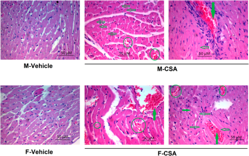Photomicrographs (1200×, H & E) of heart sections obtained from male (M) and female (F) rats treated chronically with cyclosporine A (CSA, 15 mg/kg/day for 3 weeks, s.c.) or its vehicle.Hollow arrows point to cardiac muscle shrinkage and pyknosis. Solid arrows point to congested vascular space while circles point to extravascular blood cells between cardiac muscle.