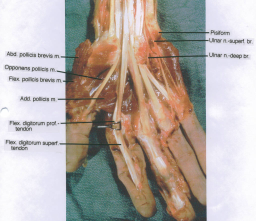 abductor pollicis brevis muscle; opponens pollicis muscle; flexor pollicis brevis muscle; adductor pollicis muscle; flexor digitorum profundus tendon; flexor digitorum superficialis tendon; pisiform; ulnar nerve