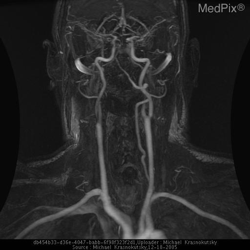 MIP from contrast enhanced MRA of the neck vessels demonstrates occlusion of a right vertebral artery.  The left artery is of normal caliber without significant flow limited lesions.