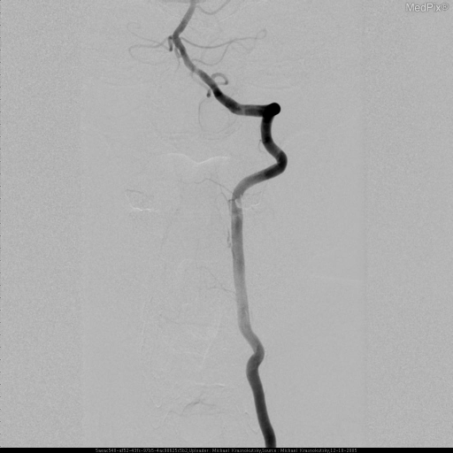 AP Angiogram demonstrates patent left vertebral artery. Patient's head in neutral position.