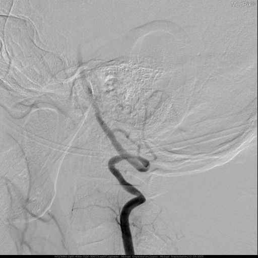 Patient's head was turned to the right.  Angiogram of the left vertebral artery demonstrated slight irregularity of the vertebral atery caliber