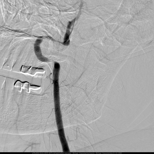 During this injection the patient's head was hyperextended by taking away a small head rest; and, turned to the right until his symptoms of dizziness were reproduced.  This angiogram of the left vertebral artery demonstrates marked narrowing and irregularity of both horizontal segments of the loop distal to foramen transversarium at C1-2 level.