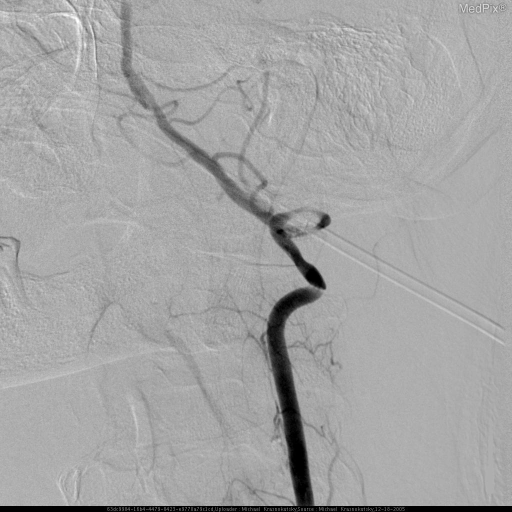 During this injection patient's head was hyperextended by taking away a small head rest and turned to the right until his symptoms of dizziness were reproduced.  Angiogram of the left vertebral artery demonstrated marked narrowing and irregularity of both horizontal segments of the loop distal to foramen transversarium at C1-2 level. (different projection)