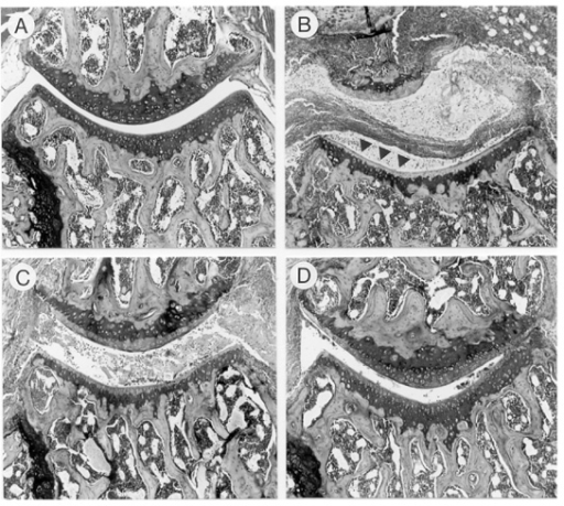 Effect of IL-4 or IL-4/prednisolone treatment on matrix				proteoglycan loss. (a) Knee joint of a control naïve mouse. The				fully stained cartilage layers indicate no loss of proteoglycans. (b)				Knee joint of an arthritic mouse treated with vehicle. Note the severe joint				inflammation and complete loss of safranin O staining of the cartilage layers				(indicated by arrows). (c) Mouse treated with IL-4 (1 μg/day).				Loss of matrix proteoglycan can still be seen. (d) Knee joint of a mouse				treated with IL-4/prednisolone (1  μg per day/0.05 mg per kg). Marked				reduction in matrix proteoglycan depletion after combined treatment. For				details see Fig. 4. Safranin O staining, original				magnification × 100.