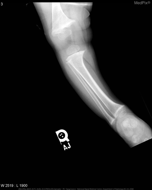 Plain films of both lower extremities demonstrate symmetric widening of the physes and metaphyseal flaring and irregularity, with generalized osteopenia but increased metaphyseal sclerosis, findings consistent with healing rickets.