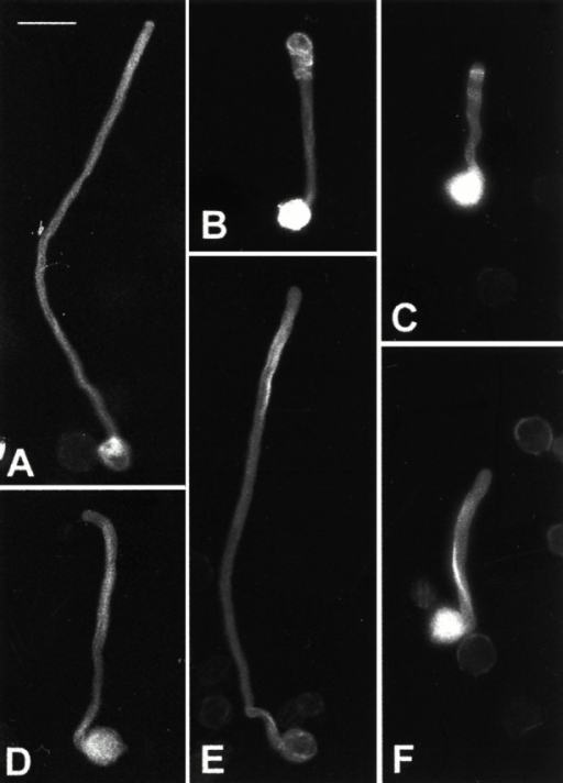 Effects of Latrunculin B on morphological phenotypes of pollen tubes overexpressing Rop1At or DN-rop1At. Pollen was transformed with different constructs and visualized using epifluorescence microscopy and a cooled CCD camera as described in Materials and Methods. A–C show typical morphology of untreated pollen tubes expressing GFP-mTalin alone (A), GFP-mTalin and Rop1At (B), and GFP-mTalin and DN-rop1 tube (C). D–F show typical morphology of pollen tubes treated with 5 nM Latrunculin B. Treated tubes expressing GFP-mTalin alone (D), GFP-mTalin and Rop1At (E), and GFP-mTalin and DN-rop1 tube (F). Bar, 50 μm.