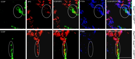 Loss of PTEN expression in BASCs from PtenΔ5/Δ5; KrasLox/+; CCSPCre/+ mice.Immunofluorescent staining of tissue sections to detect triply stained (CCSP/SPC/PTEN) cells at terminal bronchi. BASCs (encircled) illustrated at ×10 magnification. Calibration bar in lower right panel represents 100 μm.