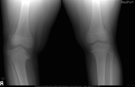Standing frontal radiograph of the bilateral knees demonstrates varus angulation of the left knee.  There is depression and irregularity of the medial right tibia.  The medial tibial physis is poorly defined.  Additionally, beaking of the metaphysis is noted and the metaphyseal-diaphyseal angle is abnormally widened at 22 degrees.