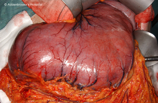 Intra-operative photo of stomach after mobilisation.