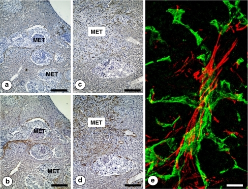 Immunohistochemical detection of CD31-expressing angiogenic endothelial cells in portal-type (pushing growth pattern) (a) and sinusoidal-type (replacement growth pattern) (c) hepatic metastases from intrasplenically-injected head and neck squamous cell murine PAN-LY2 carcinoma cells. Immunohistochemical staining for smooth muscle alpha actin expression of serial tissue sections from the same livers (b and d). Notice the co-localization of CD31 and smooth muscle alpha actin expressing cells in both kinds of hepatic metastases. Bar: 150 μm. e High-magnification confocal microscopic image on intrametastatic neo-angiogenic vessels. CD31-expressing endothelial cells (green-stained) were surrounded by smooth muscle alpha actin-expressing vascular coverage cells (red stained). Bar: 20 μm