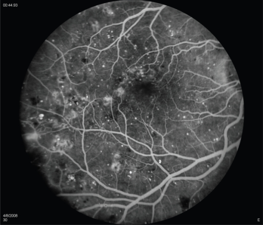 intravitreal steroids in the management of macular oedema