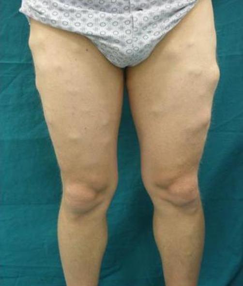 Adipositas dolorosa (ziekte van Dercum) - Huidziekten.nl