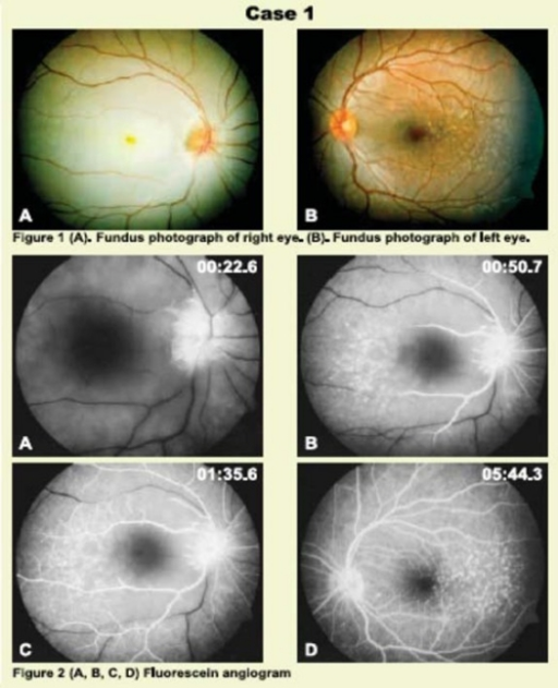 Fundus examination and fluorescein angiography of Case 1.