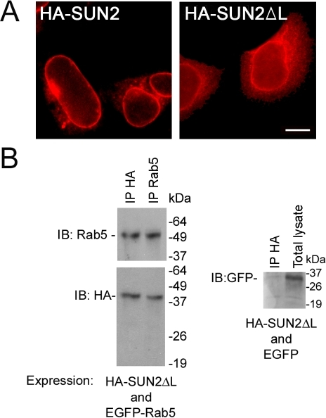 The N-terminus of SUN2 (SUN2ΔL) can interact with Rab5.(A) HA-SUN2ΔL (right) localized to both the NE and cytoplasm. Full length SUN2 is shown on the left. Scale bar, 10 µm. (B) HA-SUN2ΔL coimmunoprecipitated with EGFP-Rab5. Negative control is shown on the right.