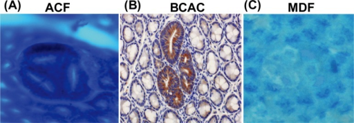 Topographic views of (A) ACF, (B) BCAC, and (C) MDF. (A) Note that three identical crypts are seen in one focus (methylene blue staining). (B) Crypts with accumulations of β-catenin protein in cytoplasm are present (immunohistochemical staining). (C) A focal lesion characterized by the absence or very small production of mucin (seen as very thin blue-stained crypts) is present (high-iron diamine-Alcian blue staining). ACF, aberrant crypt foci; BCAC, β-catenin accumulated crypts; MDF, mucin-depleted foci.