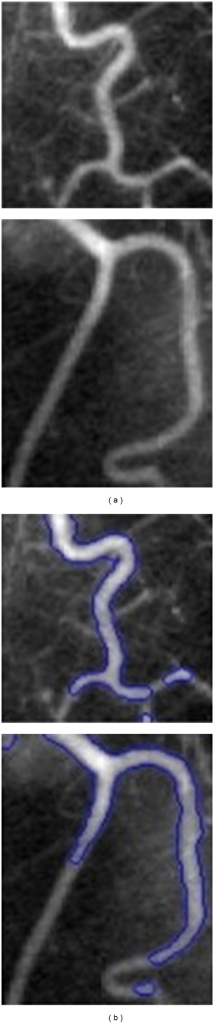 Failure of region-based level set methods for inhomogeneous images: the columns (a) original images and (b) segmentation results by blue contour [22].