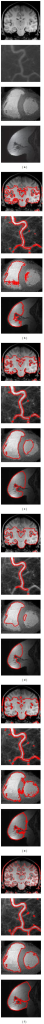 Level set segmentation of variant medical images (a) origional image, (b) initialization by GKFCM, (c) the result of CV model [31], (d) the result of localizing region-based active contours model [33], (e) the result of FTC model [11], (f) final segmentation of proposed method.