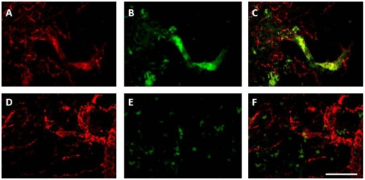 Nox2 immunohistochemistry in the stroke affected cortex is associated with vascular sprouting, in addition to inflammatory cells, 7 days after stroke. Immunofluorescent images of von Willebrand factor labelled blood vessels (red; A,D) and Nox2 labelled cells (green; B,E) in the stroke affected cortex 7 days (A–C) and 28 days (B–E) after endothelin-1 induced stroke. Merged images (C,E) reveal angiogenic vessels at 7 days (C) are double labelled with Nox2, suggesting a role for Nox2 in vascular sprouting, an effect that is no longer present 28 days after stroke (E), once vessels have matured. Scale = 100 µm.