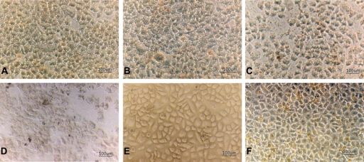 Morphology of SMMC-7721 cells under inverted microscope (100×).A, 2 g/L Fe2O3 MFH group;B, 4 g/L Fe2O3 MFH group;C, 6 g/L Fe2O3 MFH group;D, 8 g/L Fe2O3 MFH group;E, 8 g/L Fe2O3 spiking group (noradiation); F, control group A (RPMI 1640 culture mediumonly). MFH: magnetic fluid hyperthermia.