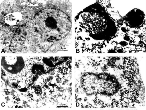 Morphology of SMMC-7721 cells after treatment. A, spikinggroup (8 g/L Fe2O3, no radiation);B-D, MFH groups (4, 6 and 8 g/LFe2O3, respectively). MFH: magnetic fluidhyperthermia.