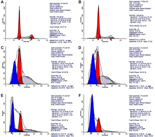 Flow cytometry of SMMC-7721 cells after treatment. A,Control group A (RPMI 1640 culture medium only); B, spikinggroup (8 g/L Fe2O3, no radiation); C, 2g/L Fe2O3 MFH group; D, 4 g/LFe2O3 MFH group; E, 6 g/LFe2O3 MFH group; F, 8 g/LFe2O3 MFH group. MFH: magnetic fluidhyperthermia.