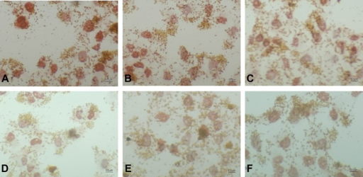 Immunocytochemical images (200×) of p53 expression in SMMC-7721 hepatomacells. A, Control group A (RPMI 1640 culture medium only);B, spiking group (8 g/L Fe2O3, noradiation); C, 2 g/L Fe2O3 MFH group;D, 4 g/L Fe2O3 MFH group;E, 6 g/L Fe2O3 MFH group;F, 8 g/L Fe2O3 MFH group. MFH:magnetic fluid hyperthermia.