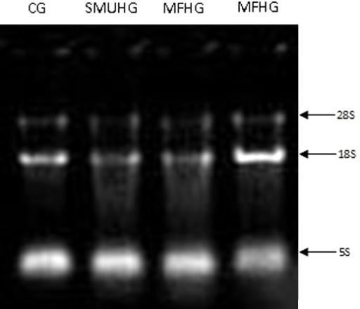 Results of RNA electrophoresis of SMMC-7721 cells in 3 groups. CG:control group A (RPMI 1640 culture medium only); SMUHG: spiking group (8 g/LFe2O3, no radiation); MFHG: magnetic fluidhyperthermia group (lane 3: 2 g/LFe2O3; lane 4: 8 g/LFe2O3).