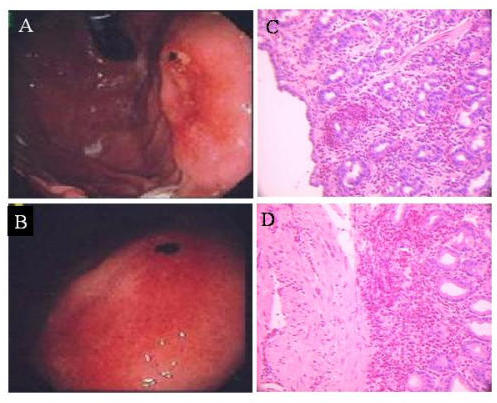 Esophagogastroduodenoscopy showing gastric erosion (A) and esophogitis (B). Panels C and D show eosinophil infiltration of gastric biopsy samples.