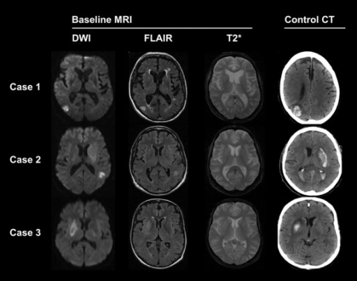 Exemplary scans from 3 ischemic stroke patients using magnetic resonance imaging (MRI) including diffusion-weighted imaging (DWI) and fluid-attenuated inversion recovery (FLAIR) prior to systemic thrombolysis within 3 h after symptom onset. While pre-treatment MRI (T2*) was used to exclude primary hemorrhage, a computed tomography (CT) – performed within 24 after treatment – served to detect bleeding. FLAIR-positive lesions seen prior to systemic thrombolysis were associated with treatmentrelated intracerebral hemorrhage.