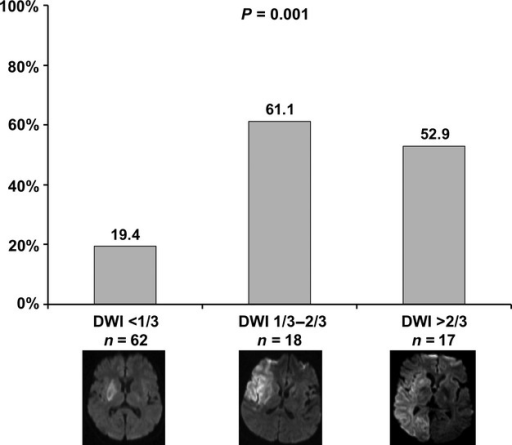 Rate of any intracerebral hemorrhage detected on computed tomography within 24 after systemic thrombolysis depending on initial lesion size as assessed by diffusion-weighted imaging (DWI) in relation to the vascular territory. For practical reasons, patients were allocated to the three groups 'DWI < 1/3', 'DWI 1/3–2/3' and 'DWI > 2/3'. For illustration, a representative DWI sequence taken from the magnetic resonance imaging prior to treatment was added under each category. P indicates level of statistical significance.
