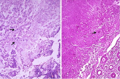 Figure 1:Multiple amoebic trophozoites in the necrotic area surrounded by acute inflammation.(Haematoxylin/Eosin x 400). Amoebic trophozoites highlighted magenta pink (PAS stain x400)