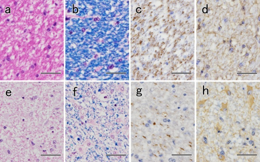 (a, b, c, d) Histological and immunohistological findings of the optic tract in a Japanese black cow (No. 23) without optic pathway degeneration (control). (e, f, g, h) Histological and immunohistological findings of the optic tract in a Japanese black bull (No. 16) with optic pathway degeneration. (e) Astrogliosis is evident in the HE-stained sections. Bar=25 µm. (f) Decrease in myelin sheath density, formation of myelin ovoid and macrophage infiltration are observed. LFB-HE. Bar=25 µm. (g) Anti-neurofilament immunohistochemistry demonstrates a reduction in axon density. Bar=25 µm. (h) Anti-GFAP immunohistochemistry detected an increased number of GFAP-positive astrocytes. Bar=25 µm.