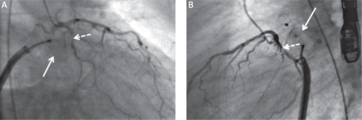 During positioning of closure device (white arrow), stenosis of circumflex coronary artery (dashed arrow) could be observed both in anteroposterior (A) and lateral views (B)