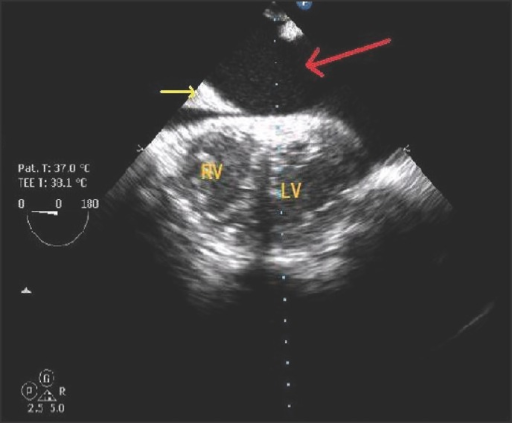 Transesophageal echocardiographic transgastric view showing collection around heart (marked by red arrow) yellow arrow showing falciform ligament of liver margin. RV: Right ventricle, LV: Left ventricle