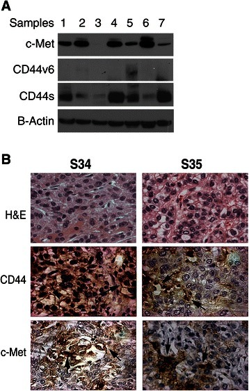 CD44s correlates with c-Met expression in human HCC samples. (A) Representative western blot in which 7 out of 33 human clinical HCC samples demonstrating c-Met, CD44v6 and CD44s co-expression. See Additional file 1: Figure S1 for all 33 samples. (B) Representative images of CD44 and c-Met immunohistochemistry performed on 68 human HCC tissues using anti-CD44 and c-Met antibodies (400X).