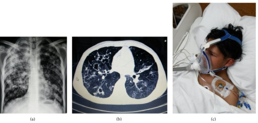 (a) Chest radiograph showing extensive multifocal consolidation and cavitation predominantly in the right upper lobe. (b) Computed tomography (CT) image scan obtained 5 weeks later shows the persistence of some caverns, nodules, and linear opacities but a significant improvement in areas of consolidation. (c) An oronasal mask was used to minimize air leakage and improve tolerance for noninvasive ventilation. Health personnel should not overlook the risk of tuberculosis transmission associated with short distances exposures.