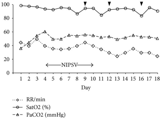 Changes in SatO2 and PaCO2 and respiratory rate (RR) in relation to the application of noninvasive pressure support ventilation (NIPSV) and 3 doses of etanercept 25 mg administered subcutaneously (black arrowheads).