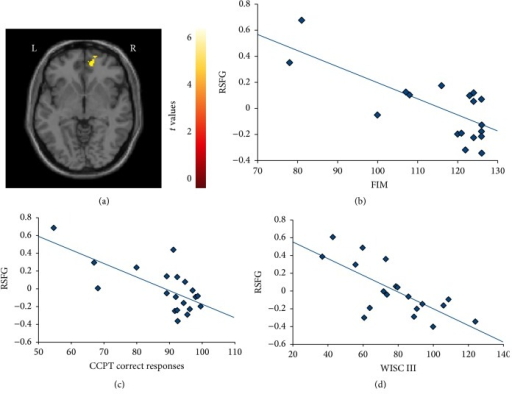 Correlations (p < 0.001) between increased functional magnetic resonance imaging activation of the right superior frontal gyrus (SFG) (a) during the load fMRI condition of the Conners Continuous Performance Test (CCPT) in acquired brain injury patients versus (b) Functional Independent Measure (FIM) scores; (c) the percentage of correct responses during CCPT; and (d) Wechsler Intelligence Scale for Children (WISC-III) score.