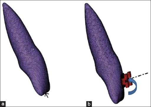 (a) Load application along the long axis of the tooth, (b) load application for lingual root torque.