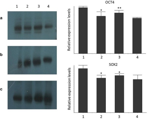 Representative figure of Western blot analysis of OCT4 (a), SOX2 (b) and b-actin (c) proteins, and relative expression of OCT4 and SOX2. Samples 1 CD tissue, 2 CD blood, 3 UC tissue, 4 UC blood. *p < 0.05; **p < 0.01