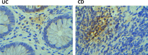 Representative immunohistochemical OCT4 expression analysis of CD and UC tissues
