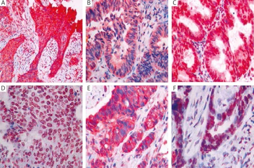 Immunohistochemical staining in lung, ovarian and pancreatic cancer. A) Cytoplasmic RRM1 +3 staining in lung squamous cell carcinoma. B) Cytoplasmic RRM1 +3 staining in lung adenocarcinoma. C) Cytoplasmic and nuclear RRM1 +3 staining in lung adenocarcinoma. D) Cytoplasmic and nuclear ERCC1 +3 staining in lung squamous cell carcinoma. E) Cytoplasmic RRM1 +3 staining in pancreas cancer. F) Cytoplasmic and nuclear ERCC1 +3 staining in ovarian cancer