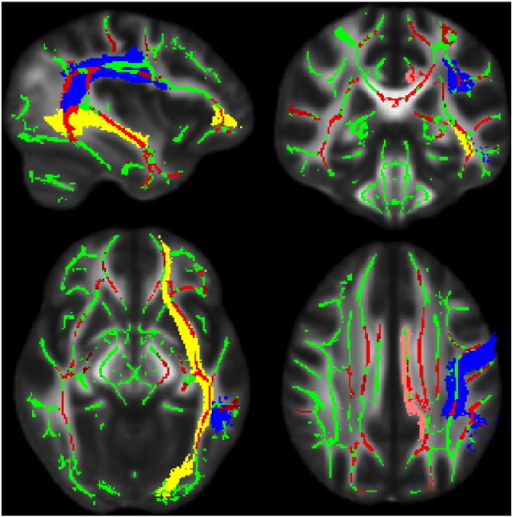 TBSS Results. White matter skeleton appears in green. The cingulum bundle (pink), superior longitudinal fasciculus (blue), and inferior fronto-occipital fasciculus (yellow) regions from the Johns Hopkins University atlas are illustrated. Clusters where OI group FA is significantly greater than the TBI group (p < 0.05, multiple comparison correction) appear red. (For interpretation of the references to color in this figure legend, the reader is referred to the web version of this article.)