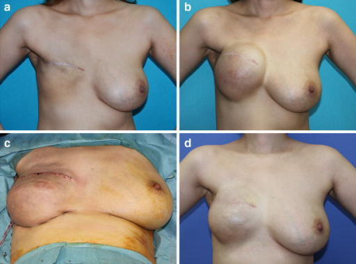 A 30-year-old patient who underwent delayed, right breast reconstruction following non-skin-sparing mastectomy and postmastectomy radiotherapy. a Preoperative view, b a tissue expander was inflated to 600 mL, c immediately postoperative view after exchange of the tissue expander for a 410 mL implant, d postoperative view. Note the loss of the defined inframammary fold. Future reduction of the contralateral breast is planned