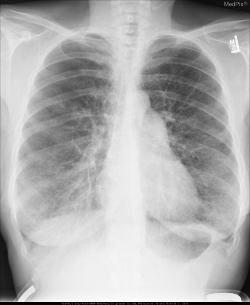 Chest x-ray demonstrates severe bilateral interstitial reticular pattern, there is fullness of the middle mogul, possibly pulmonary arterial hypertension. The left costo-vertebral (CV) angle is blunted, possibly from pleural fluid or fibrosis.