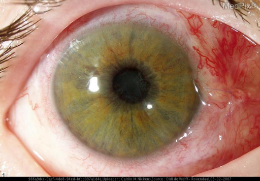 A patient with Retinopathy of Prematurity.