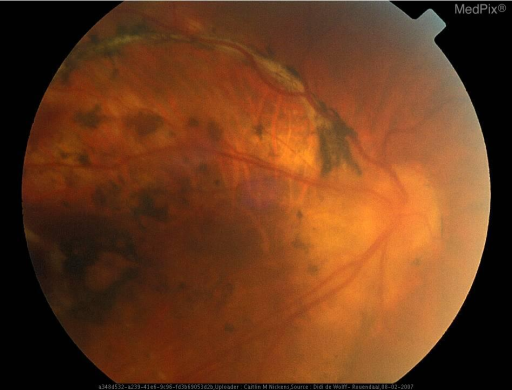 A patient with Retinopathy of Prematurity: Fundus Right Eye